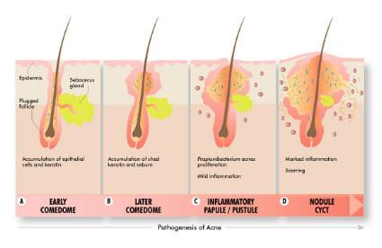 粉刺的形成過程